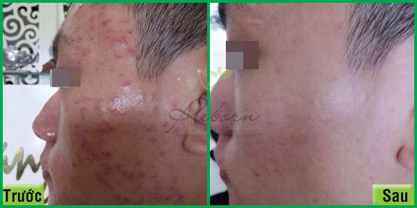 Trước và sau khi chăm sóc da mặt bị mụn tại Reborn.
