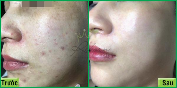 Trước và sau khi chăm sóc da mặt bị thâm do mụn để lại.