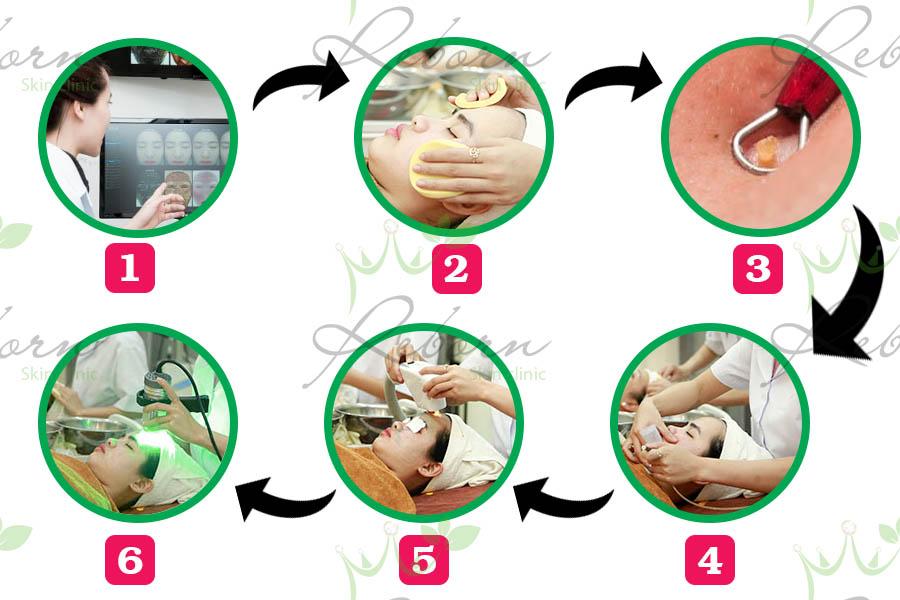 Quy trình điều trị mụn chuẩn Y khoa tại Reborn.