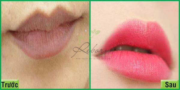 Trước và sau khi phun môi thẩm mỹ tại Reborn Skin Clinic
