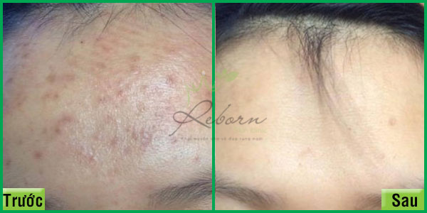 Trước và sau khi chăm sóc massage da mặt tại Reborn Skin Clinic Hà Nội