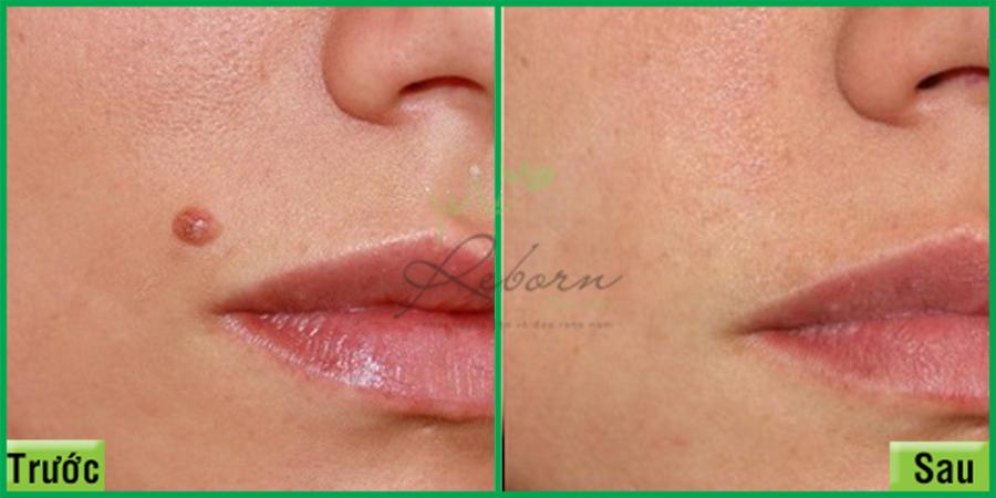 Trước và sau khi trị mụn thịt Reborn Skin Clinic