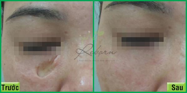 Làm đầy và tái tạo vùng da sẹo hiệu quả.
