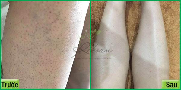 Điều trị viêm nang lông hiệu quả tại Reborn Clinic ở Hà Nội.