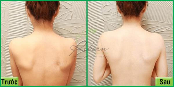Trước và sau tắm trắng toàn thân hiệu quả tại Reborn