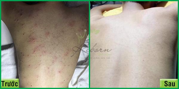 Điều trị mụn lưng hiệu quả tại Hà Nội - Reborn skin clinic.
