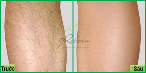 Triệt lông chân hiệu quả tại Reborn Skin Clinic ở Hà Nội.